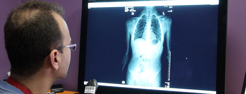قسم الأشعة